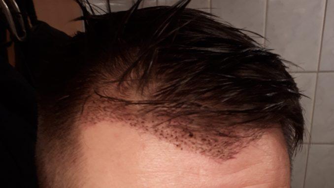 14 Tage nach der Haar-OP