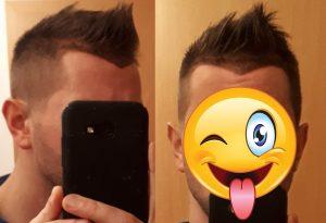 Ungefähr gewünschte neue Haarlinie