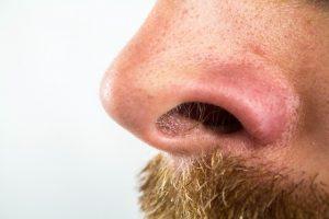 Mitesser auf der Nase